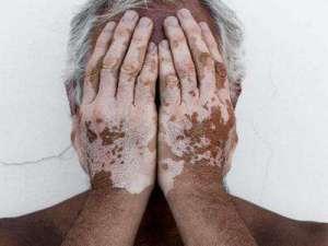 老年白癜风治疗时有什么要注意