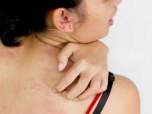 白斑病初期夏季如何预防蚊虫叮咬