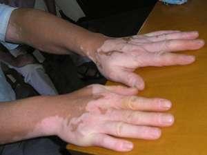手部白癜风的危害包括什么