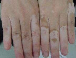 皮肤病白癜风遗传吗